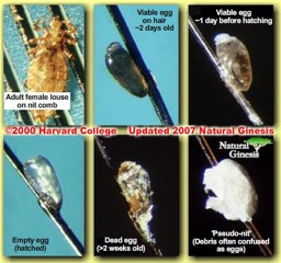 Lice Stages Head Lice Treatment Professional Lice